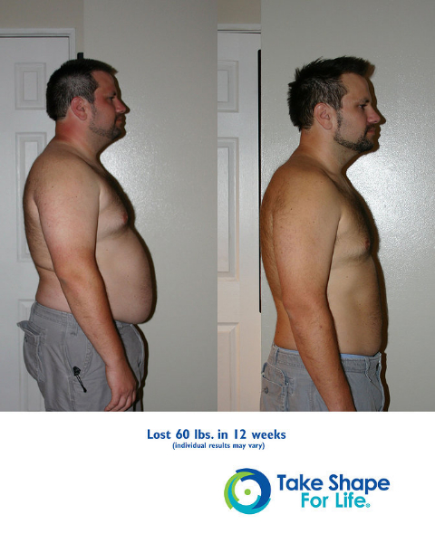 Cdatabefore after debv2 lightened weight loss 3g ccuart Choice Image
